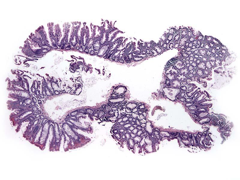 Sessile Serrated Adenoma Sessile serrated adenoma