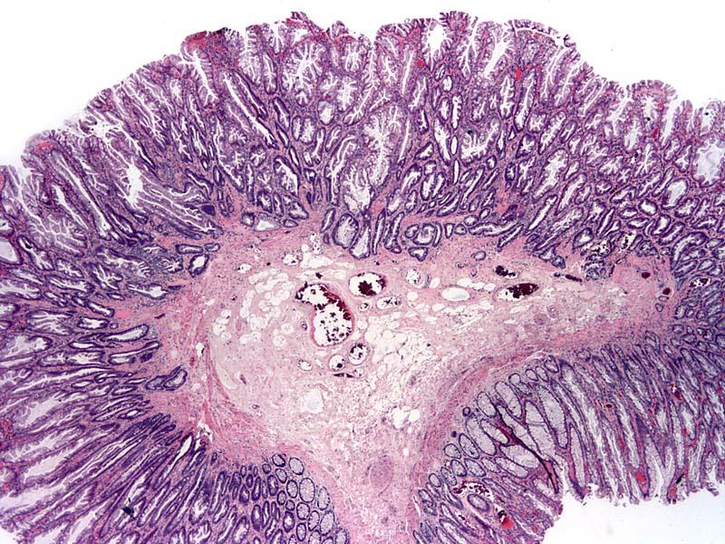 Colon tumor - Serrated polyp / adenoma