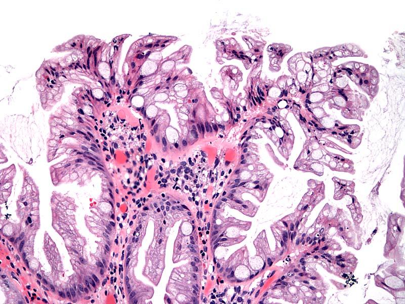 Sessile Serrated Adenoma Pathology Outlines - S...